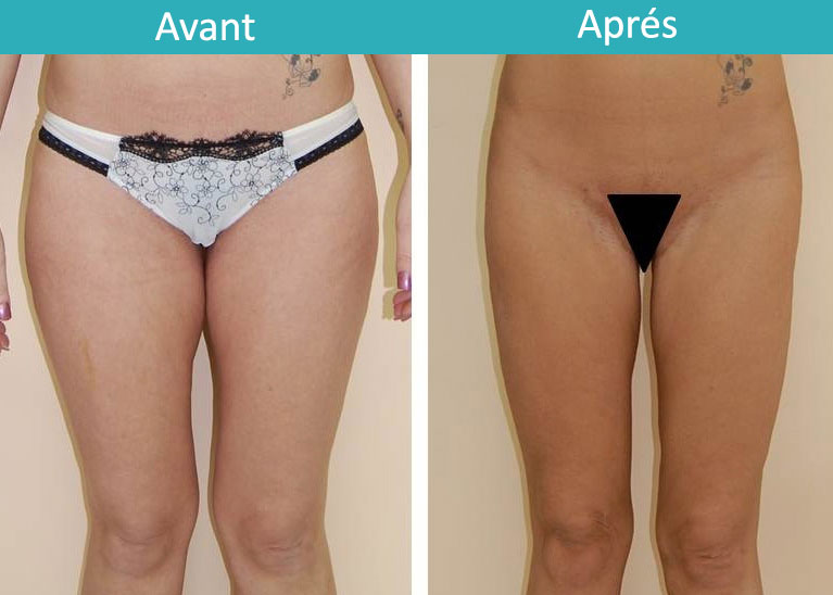 lifting-cuisses-avant-apres