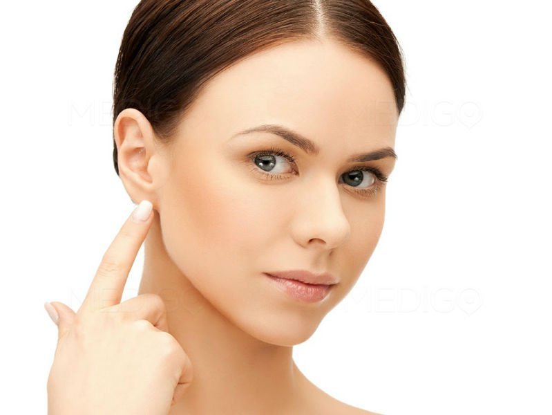 Le lifting cervico-facial
